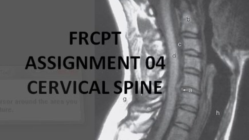 FRCPT Assignment 01: Cervical Spine