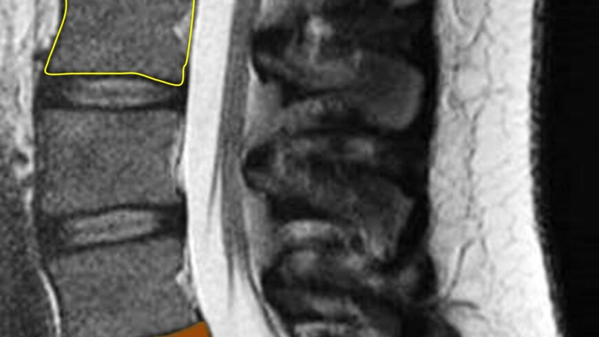 How to identify Normal Nucleus & Annulus in MRI of IVD?