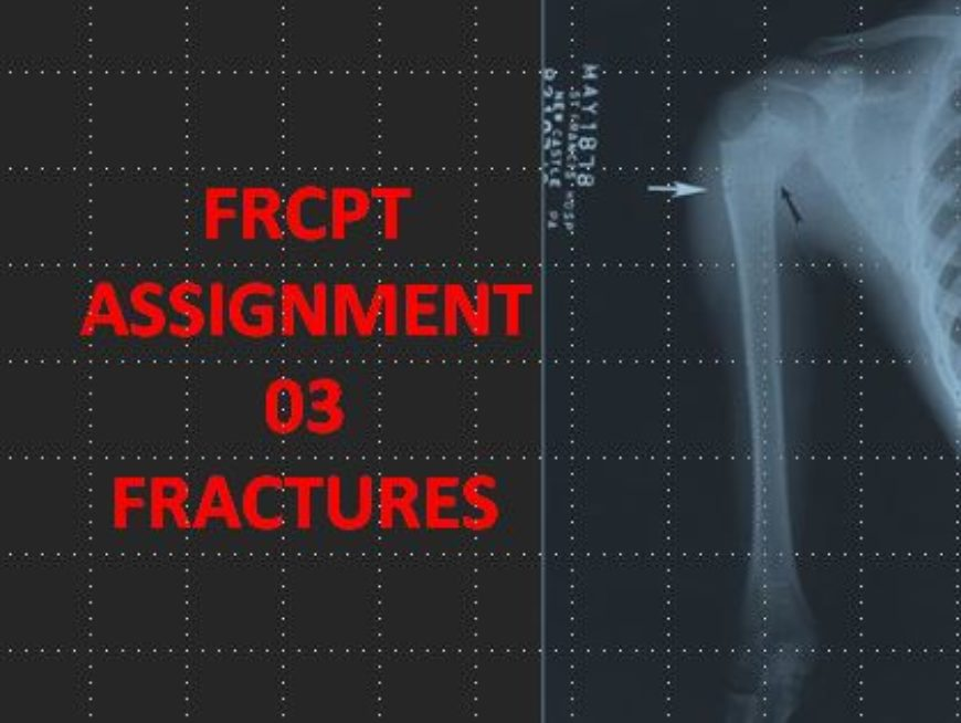 FRCPT Assignment 03: Fractures